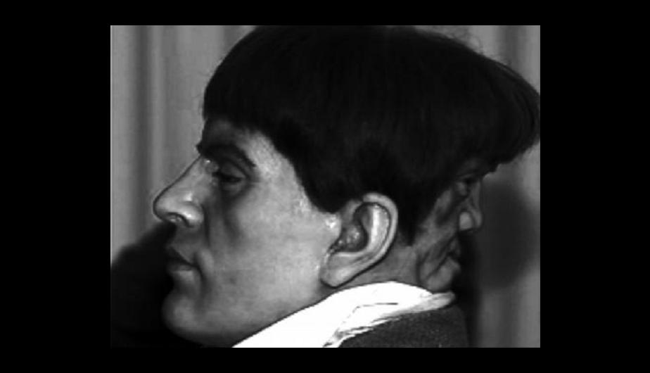 """Edward Mordake: """"El hombre con 2 rostros"""" 9"""